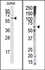 AP14647PU-N - TGFBR1 / ALK-5