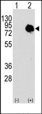 AP14652PU-N - Transglutaminase-2 (TGM2)