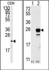 AP14522PU-N - NRAS