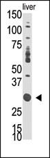 AP14446PU-N - DOK5