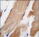 AP14367PU-N - Integrin-linked protein kinase