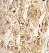 AP14406PU-N - CD140b / PDGFRB