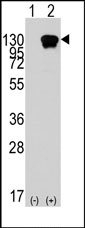 AP14413PU-N - ROR1