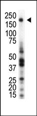 AP14419PU-N - CD136 / MST1R