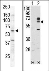 AP14421PU-N - Tyrosine-protein kinase RYK