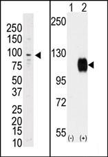 AP14424PU-N - TYRO3