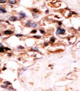 AP13862PU-N - UCKL1