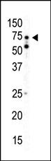 AP13880PU-N - PRKAA2