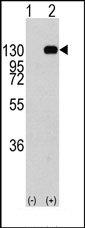 AP14333PU-N - FGFR1