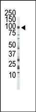 AP14342PU-N - CD333 / FGFR3