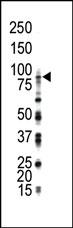 AP14343PU-N - CD334 / FGFR4