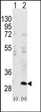 AP14347PU-N - IGFBP3