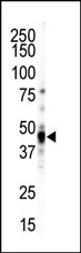 AP13881PU-N - CAMK1D