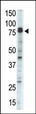 AP13897PU-N - Doublecortin-like kinase 1