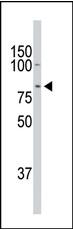AP13898PU-N - Doublecortin-like kinase 1