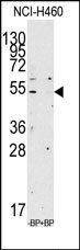 AP14249PU-N - Apolipoprotein A IV / ApoA4