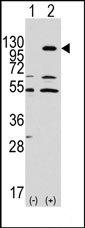 AP14289PU-N - EPHA7