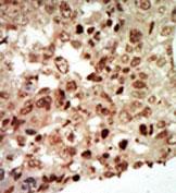 AP13902PU-N - MAP kinase p38 beta / MAPK11