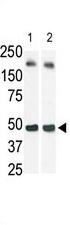 AP13921PU-N - Sphingosine kinase 1 (SPHK1)
