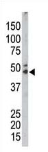 AP13922PU-N - Sphingosine kinase 1 (SPHK1)