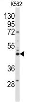 AP13923PU-N - Sphingosine kinase 1 (SPHK1)
