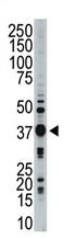 AP13931PU-N - STK16