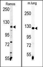 AP14071PU-N - Vinculin (VCL)