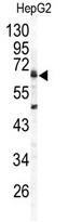AP14108PU-N - Arylsulfatase B