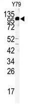 AP14113PU-N - KIF3C