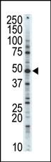 AP14137PU-N - CDK10
