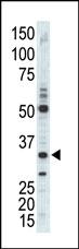 AP14138PU-N - CDK1