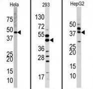 AP13945PU-N - ERK2
