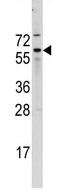 AP13958PU-N - CDC25B