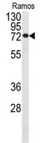 AP13959PU-N - CDC25B