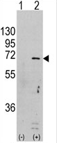 AP13965PU-N - PRKAA1