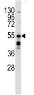 AP13972PU-N - Beta-2 adrenergic receptor