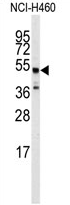 AP13973PU-N - Beta-2 adrenergic receptor
