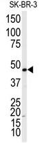 AP13974PU-N - Beta-2 adrenergic receptor
