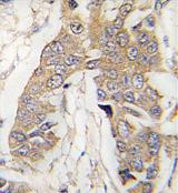 AP13976PU-N - CASC3