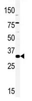 AP13980PU-N - HMX2