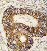 AP13987PU-N - Prohibitin-2