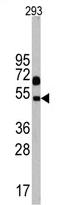 AP13991PU-N - Neuronal pentraxin-1