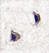 AP13992PU-N - Neuronal pentraxin-1