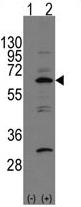 AP13993PU-N - APPBP1