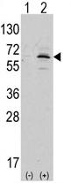 AP13996PU-N - APPBP1