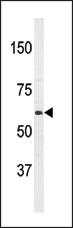 AP13998PU-N - APPBP2