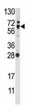 AP13999PU-N - NFE2L2