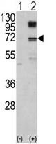 AP14000PU-N - NFE2L2