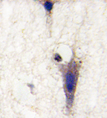 AP14015PU-N - LINGO1