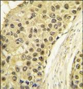 AP14029PU-N - Cyclin A2